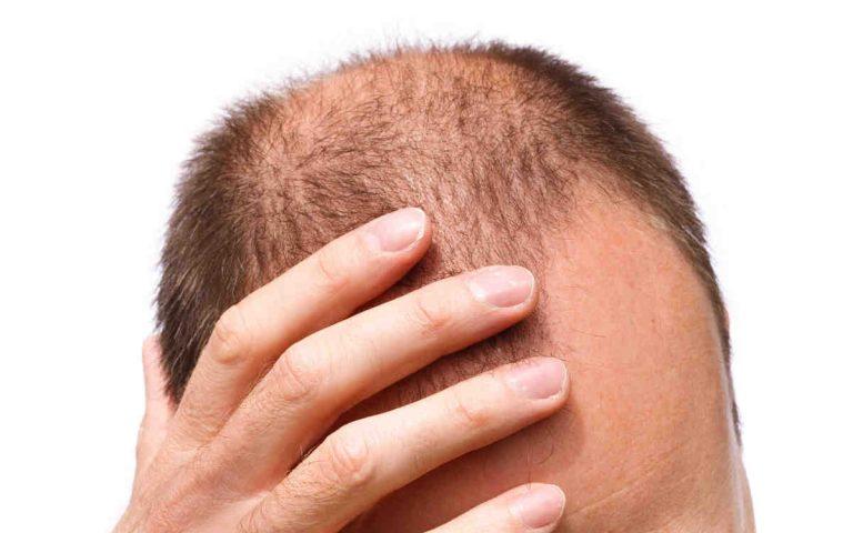 دليل القادمين الى تركيا لزراعة الشعر